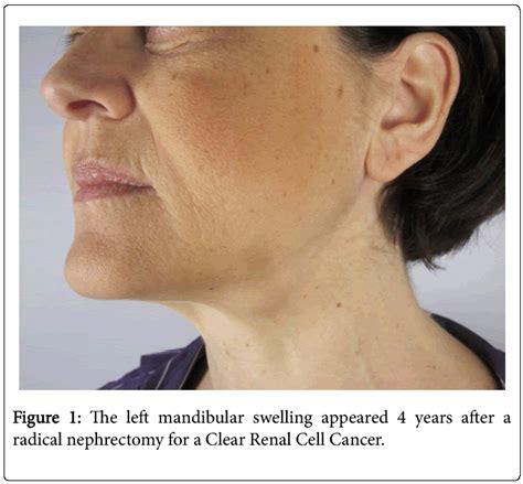 Submandibular Gland Cancer | www.pixshark.com - Images ...