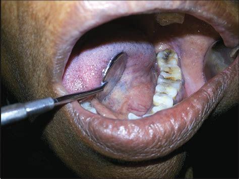 Submandibular gland swelling: A diagnostic dilemma Kumar T ...