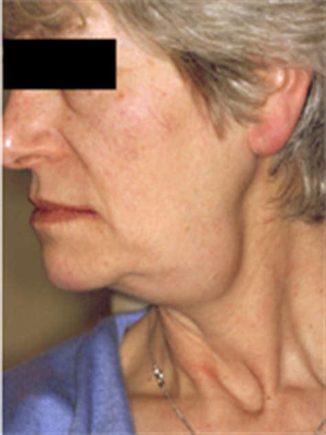 submandibular salivary gland swelling