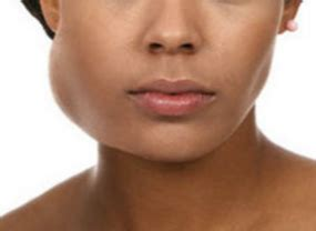 Swelling of Salivary Gland: Causes and Treatments   New ...
