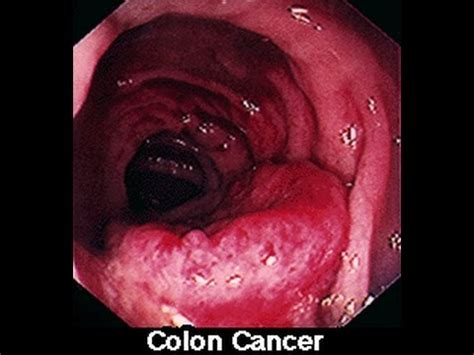 Symptoms of Colon Colorectal Cancer in Men & Women - YouTube