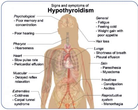 symptoms of thyroid problems in women - Health Love