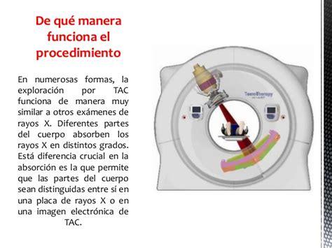 TAC, RESONANCIA MAGNÉTICA NUCLEAR, ELECTROENCEFALOGRAMA ...