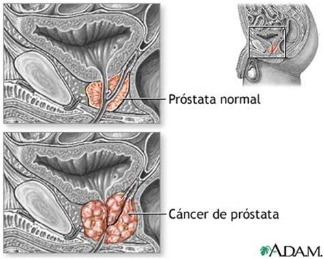 Tem alguém ai?: Câncer de Próstata..