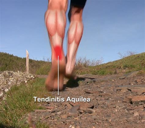 Tendinitis de Aquiles en el corredor minimalista