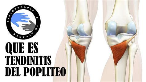 Tendinitis poplitea, que es y porque se produce el dolor ...