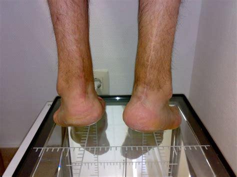 Tendón Aquiles   Cirugía de pie tobillo
