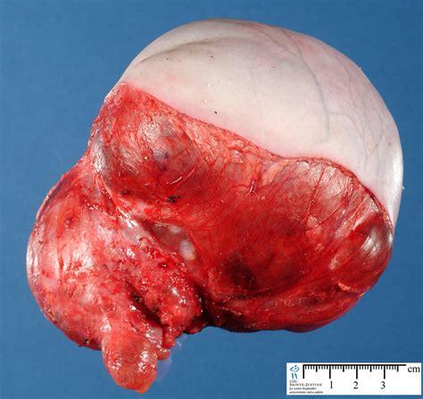 teratoma - Humpath.com - Human pathology