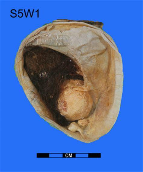 Teratoma, ovarian. Causes, symptoms, treatment Teratoma ...