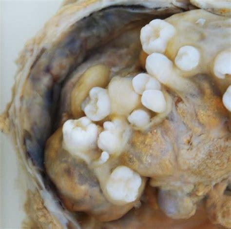 Teratomas (Germ cell tumors) | PA | Pinterest | Posts
