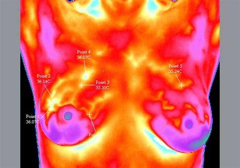 Termografía para detección de cáncer de mama   Tecnología ...