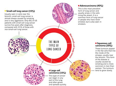 The Dominant Malignancy: Lung Cancer : Of Schemes and ...