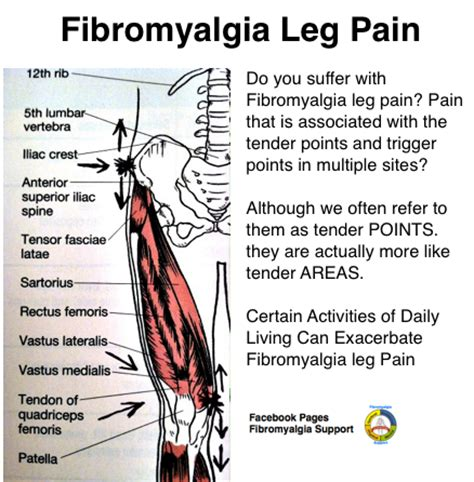 The finer points of leg pain related to #fibromyalgia # ...