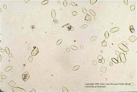 The gallery for --> Uric Acid Crystals In Urine