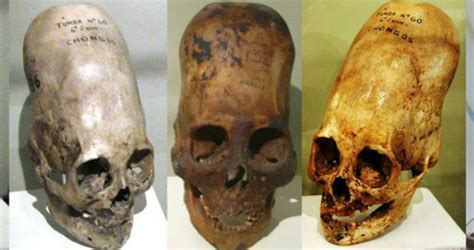 The mystery of elongated skulls has yet to be solved