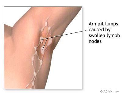 The New York Times > Health > Image > Swollen Lymph Nodes ...