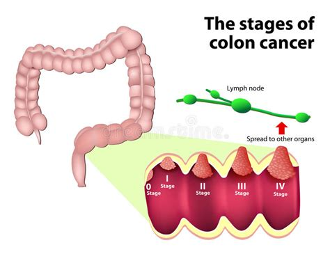 The Stages Of Colorectal Cancer Stock Vector ...