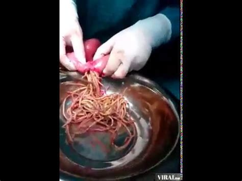 Thousands Of Parasite Worms Removal From Stomach Intestine ...