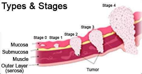 Throat Cancer Early Signs & Symptoms
