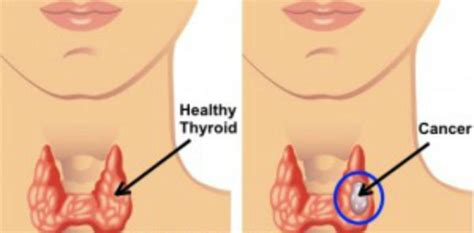 Thyroid Cancer Causes, Symptoms, Diagnosis and Treatment ...