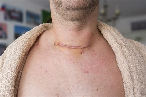 Thyroid cancer rates in Pennsylvania rising faster than ...