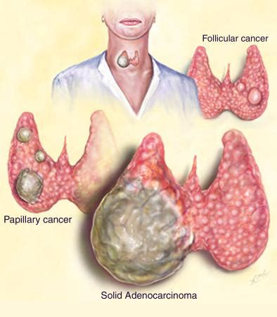 Thyroid Cancer   Risk Factors And Symptoms   Doctor Tipster