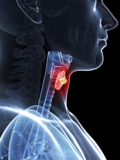 Thyroid Cancer – Am I at Risk? | Continental Hospitals Blog