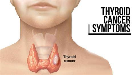 THYROID CANCER SYMPTOMS   YouTube