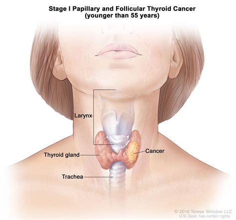 Thyroid Cancer Treatment  PDQ® —Patient Version   National ...