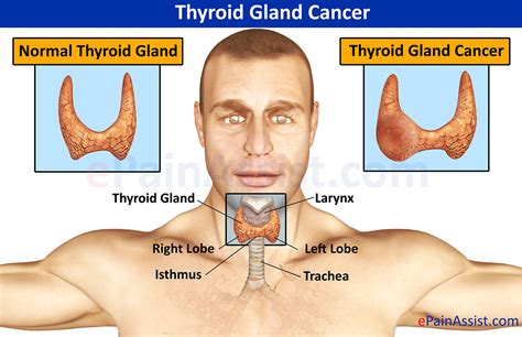 Thyroid Gland Cancer|Causes|Symptoms|Treatment Surgery ...