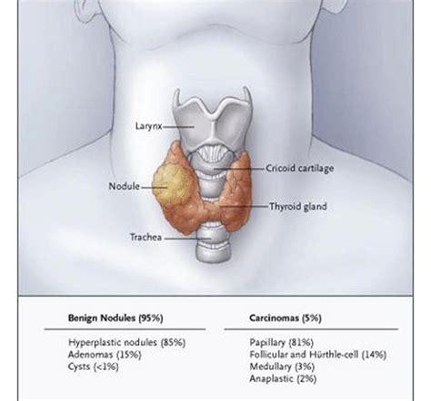 Thyroid Nodules | Endocrine and metabolic diseases ...