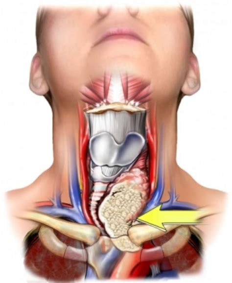 Thyroid Nodules – Photo Gallery