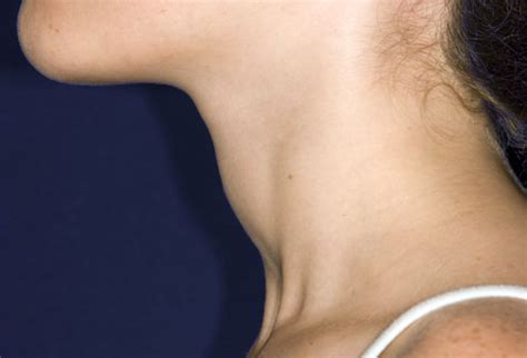 Thyroid Symptoms Pictures: Fatigue, Weight Gain, Hair Loss ...