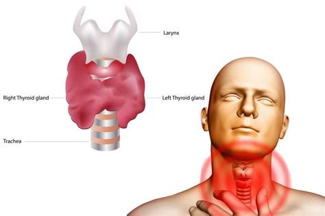 Thyroid, Thyroid gland and Home remedies on Pinterest