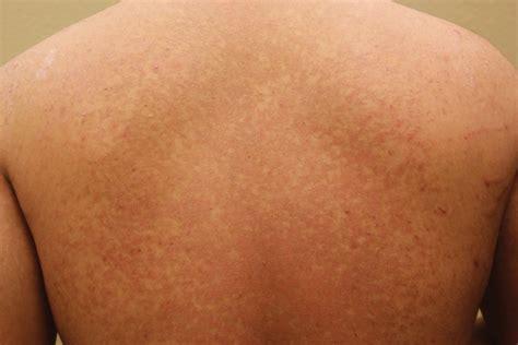 Tinea Versicolor   Pictures, Treatment, Causes, Contagious ...