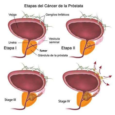 Tipos de Cáncer > Cáncer de Próstata | Prevención del Cáncer