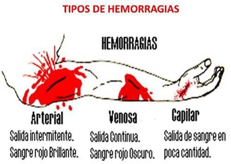 Tipos de hemorragias y tratamiento | Blog de farmacia