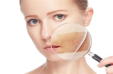 Tipos de manchas en la piel y sus causas | Ella Hoy