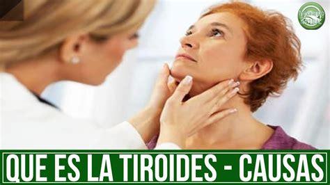 Tiroides que es ? causas, sintomas hipotiroidismo e ...
