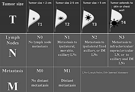 TNM and Staging of Breast Cancer Simplified | Epomedicine