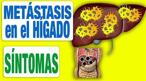 Todos los Síntomas de las Metástasis en el Hígado   YouTube