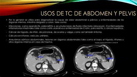 Tomografía computada abdomen y pelvis