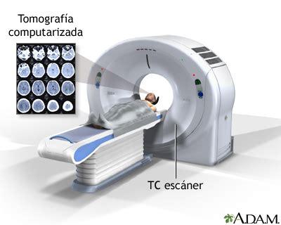 Tomografía computarizada de la cabeza