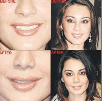 Top 10 Bollywood and Hollywood Plastic Surgery Disasters
