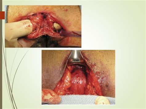 Tratamiento cancer de prostata