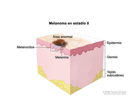 Tratamiento del melanoma (PDQ®)—Versión para profesionales ...