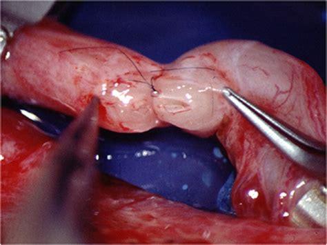 Tratamientos Andrológicos   UroBarcelona