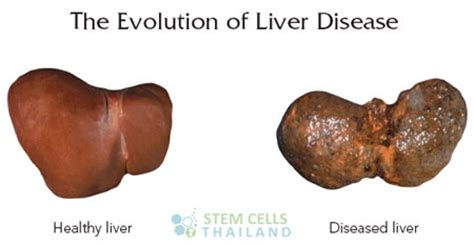 Treat Liver Disease Fibrosis Cirrhosis Hepatocyte Cell Therapy