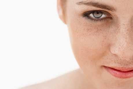 TU SALUD: Remedios naturales contra las manchas