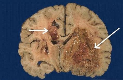 Tumor cerebral: aprenda a identificar os sintomas da doença